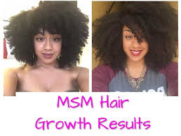msm hair growth before and after