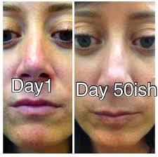 post ged with 30 day skin detox acne before and after body can heal itself caveman regimen clogged pores don t wash your skin skin care