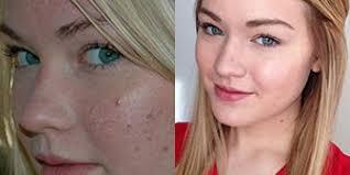 makeup photos spark debate on reddit benefits of raw honey on skin reddit user posts remarkable stars without