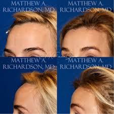 forehead reduction surgery ireland