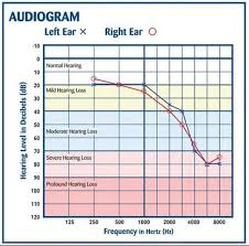 What Does 4000 Hz Tell You About A Childs Hearing
