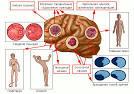 гипоперфузия сосудов головного мозга