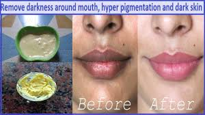 remove darkness patches around mouth in 10 minutes 100 ग र ट effective home remedy