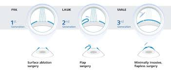 smile lasik or prk which is best