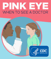 Doctors Note For Pink Eye Conjunctivitis Pink Eye Diagnosis Cdc