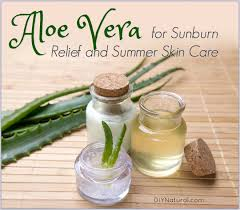 home remes for sunburn aloe vera