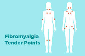Fibromyalgia Tender Points Chart Fibromyalgia Tender Points What And Where Are They
