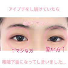眼瞼 下垂 アイプチ