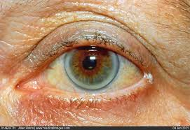 STOCK IMAGE, close-up of the eye showing arcus senilis a gray-white arc around the cornea consisting of calcium and cholesterol deposits in a 56 year old woman unilateral arcus may be an