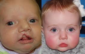 treatment surgical repair of left plete cleft lip
