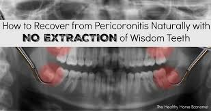 several years ago i wrote an article concerning the frustratingly persistent myths about wisdom tooth extraction whether dentists care to admit it or not