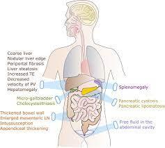 cystic fibrosis patients
