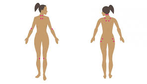 Fibromyalgia Symptoms In Women Causes And Treatments