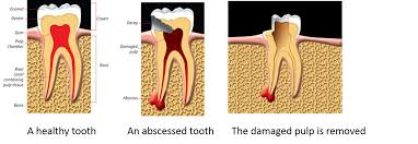 infected root canal pain relief