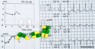 Ekg Or Ecg Electrocardiogram Graph Report Paper Est