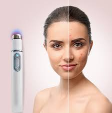 Ipl Blue Light Therapy For Acne Skin Light Therapy Pen In 2019 Light Therapy Skin Tag