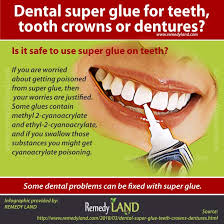 can you use super glue for dental crowns