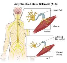 amyotrophic sclerosis
