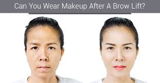 can you wear makeup after a brow lift