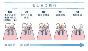 「むし歯の進行画像」の画像検索結果