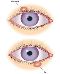 a stye is a bacterial infection of an oil gland in the eyelid at the base of the eyelash this results in a red p on either the outside or inside of