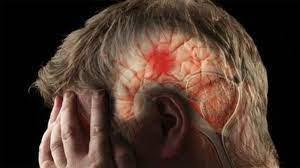 Ataque cerebral — Steemit