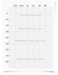Normal Hearing Range Age Chart Online Hearing Test Audiogram Printout