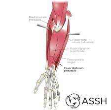 The common extensor tendon is a soft tendon that's located in the forearm. Body Anatomy Upper Extremity Tendons The Hand Society