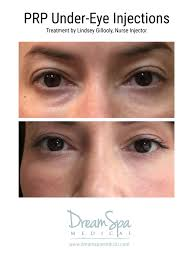 treatment for under eye dark circles eye bags and puffiness