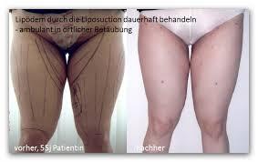 Fettabsaugung oberschenkel schmerzen