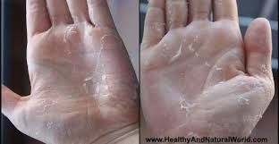 peeling skin on hands and feet