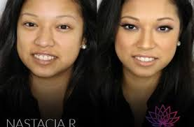 beauty before after