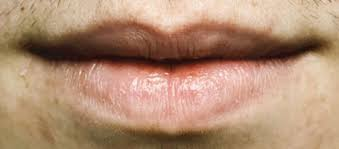 lip cancer not unmon often overlooked