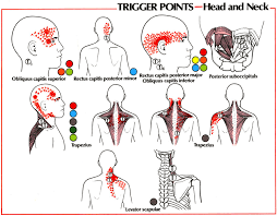 Pain Referral Patterns Fascinating Trigger Point Referral Patterns Balance In Motion Bodywork