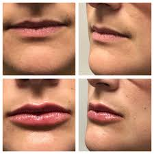 uber natural results with volbella courtesy of gbc s talented nurse injector katie wood rn