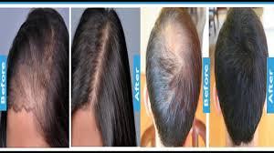 hair growth serum for men women 100 results must watch