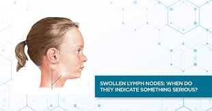 swollen lymph nodes when do they