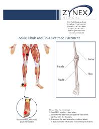 Zmpczm016000 12 17 Ankle Fibula Tibula Electrode Placement