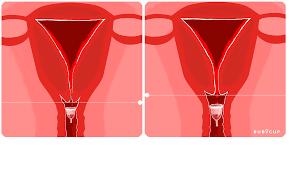 Image result for menstrual cup