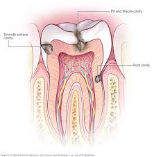 Tooth Position Chart Cavities Tooth Decay Symptoms And Causes Mayo Clinic