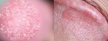 陰茎 皮膚 切れる
