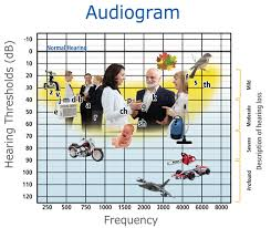 Hearing Banana Chart What Is An Audiogram