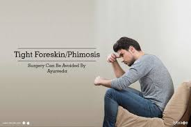 Tight Foreskin/Phimosis Surgery Can Be Avoided By Ayurveda - By Dr ...