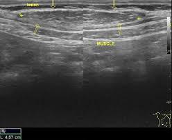 pic of lipoma in abdomen page 5