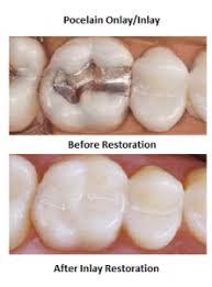 dental onlay dental onlay inlays vs traditional fillings arlington dental