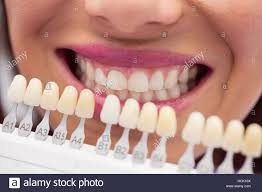 Dentist Shade Teeth Stock Photos Dentist Shade Teeth Stock