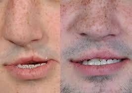 cleft lip repair secondary unilateral cleft lip