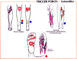 Trigger Points Foot Chart Trigger Point Referral Patterns Balance In Motion Bodywork