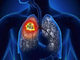 Xét nghiệm phát hiện ung thư phổi