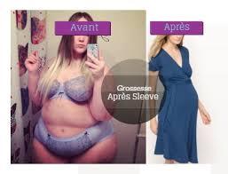 """Résultat de recherche d'images pour """"photo grossesse et sleeve"""""""
